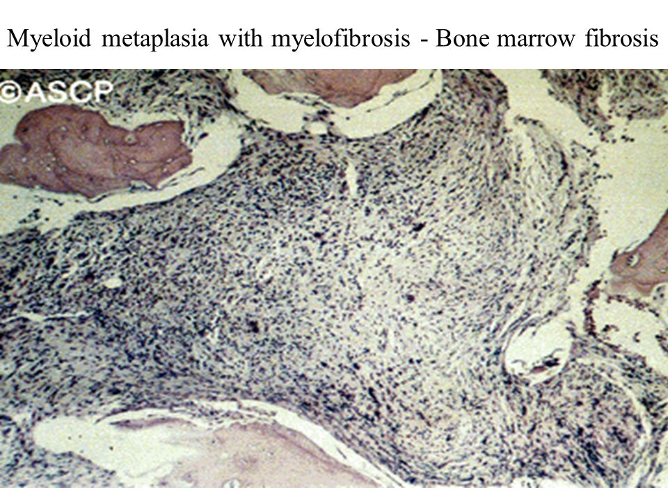 Myeloid metaplasia with myelofibrosis - Bone marrow fibrosis