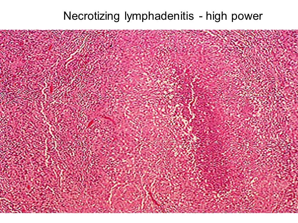 Necrotizing lymphadenitis - high power