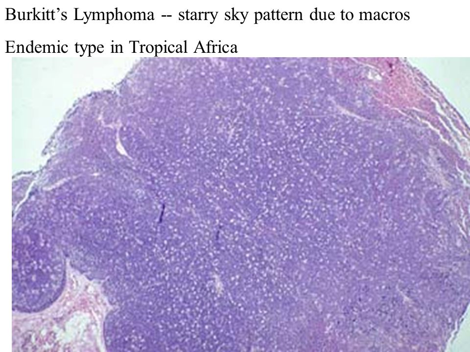 Burkitt's Lymphoma -- starry sky pattern due to macros Endemic type in Tropical Africa