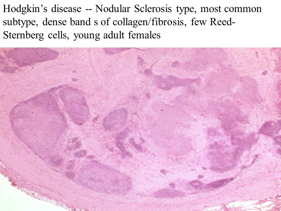 Hodgkin's disease -- Nodular Sclerosis type, most common subtype, dense band s of collagen/fibrosis, few Reed- Sternberg cells, young adult females