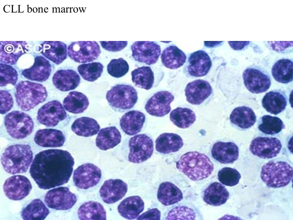 CLL bone marrow