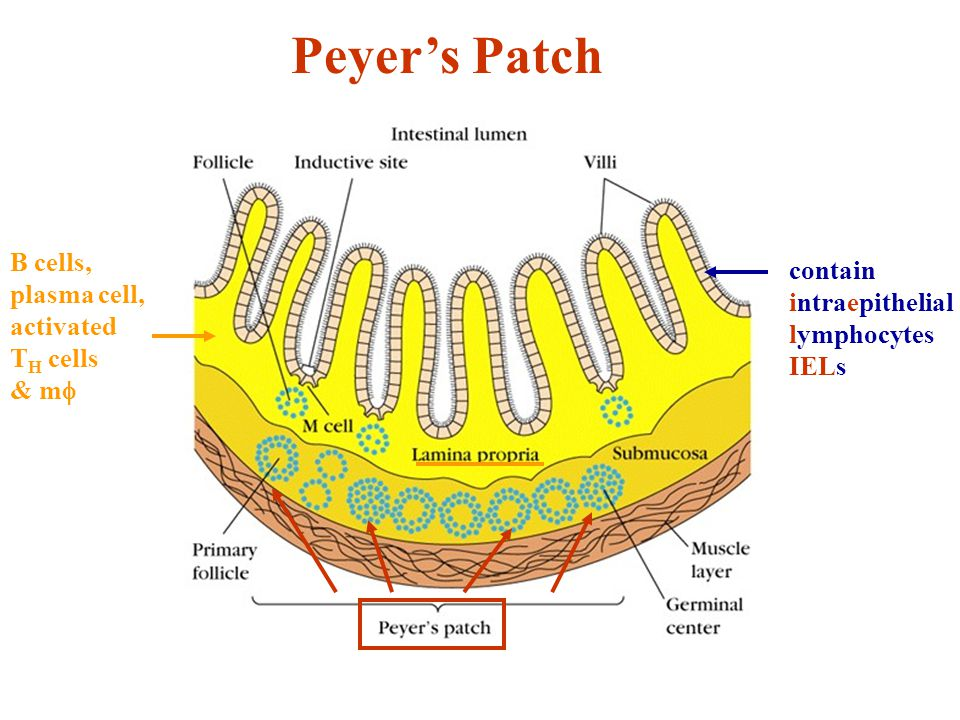 Peyer's Patch contain intraepithelial lymphocytes IELs B cells, plasma cell, activated T H cells & m 