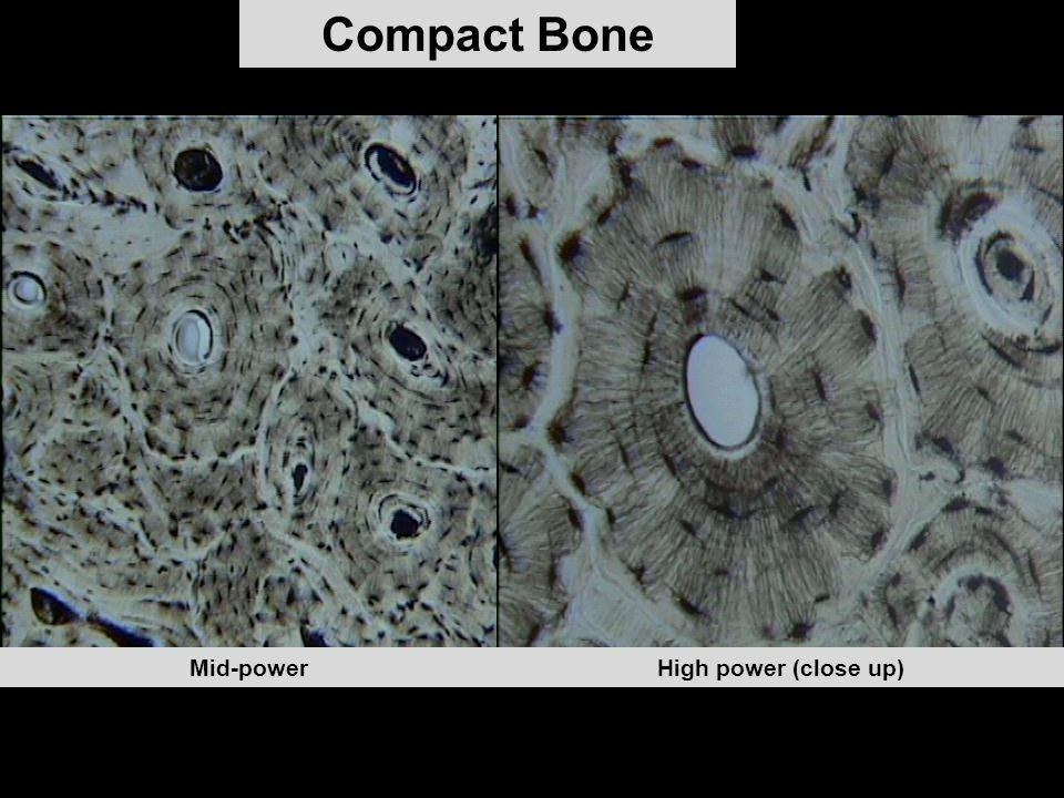 Compact Bone High power (close up)Mid-power