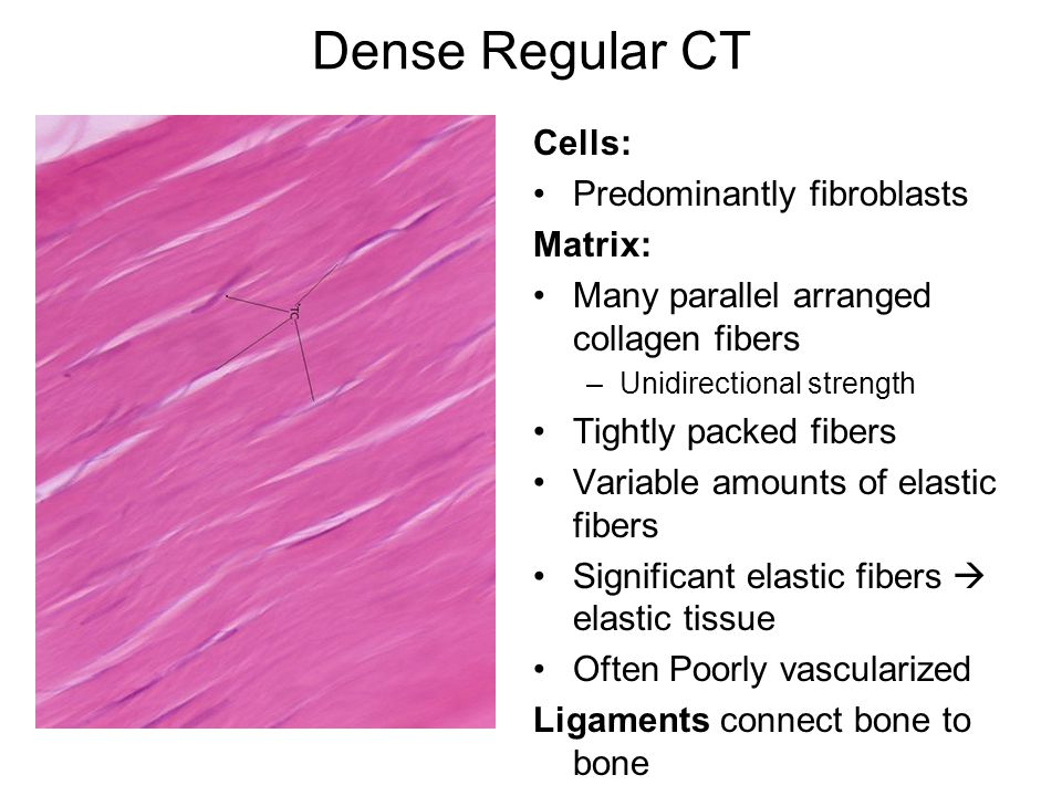 Dense Regular CT Cells: Predominantly fibroblasts Matrix: Many parallel arranged collagen fibers –Unidirectional strength Tightly packed fibers Variable amounts of elastic fibers Significant elastic fibers  elastic tissue Often Poorly vascularized Ligaments connect bone to bone