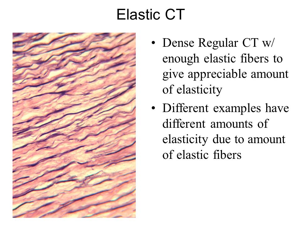 Elastic CT Dense Regular CT w/ enough elastic fibers to give appreciable amount of elasticity Different examples have different amounts of elasticity due to amount of elastic fibers