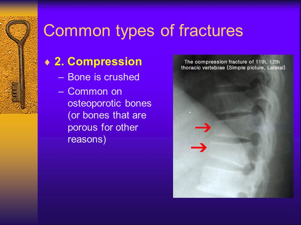 Common types of fractures  2. Compression –Bone is crushed –Common on osteoporotic bones (or bones that are porous for other reasons)