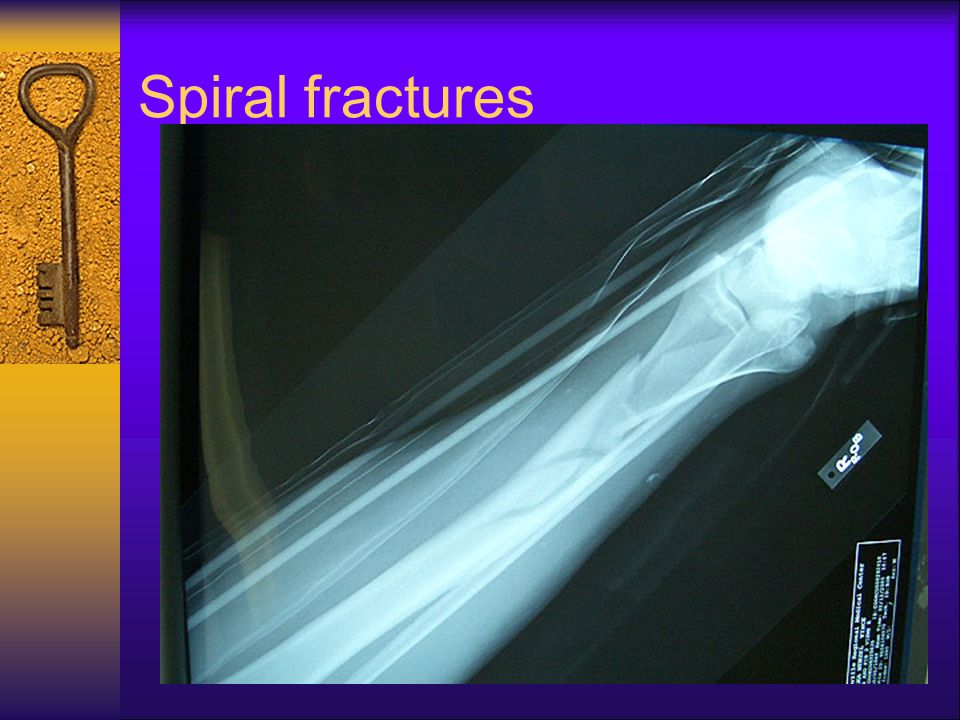 Spiral fractures
