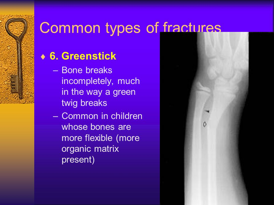 Common types of fractures  6. Greenstick –Bone breaks incompletely, much in the way a green twig breaks –Common in children whose bones are more flex