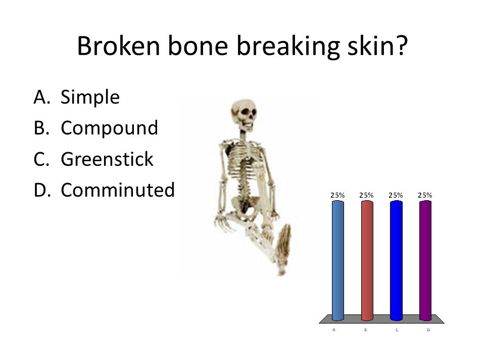 Broken bone breaking skin? A.Simple B.Compound C.Greenstick D.Comminuted