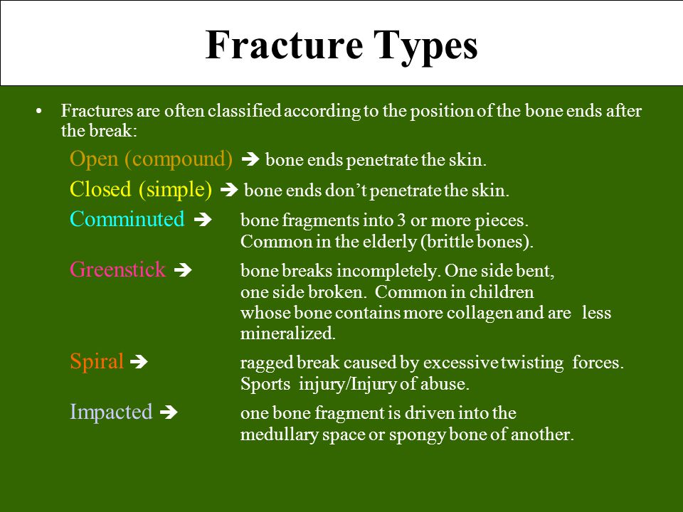 Fracture Types Fractures are often classified according to the position of the bone ends after the break: Open (compound)  bone ends penetrate the skin.