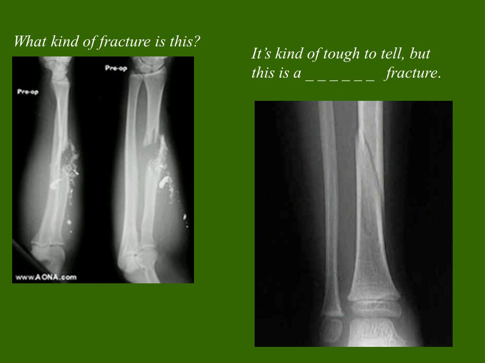 What kind of fracture is this It's kind of tough to tell, but this is a _ _ _ _ _ _ fracture.