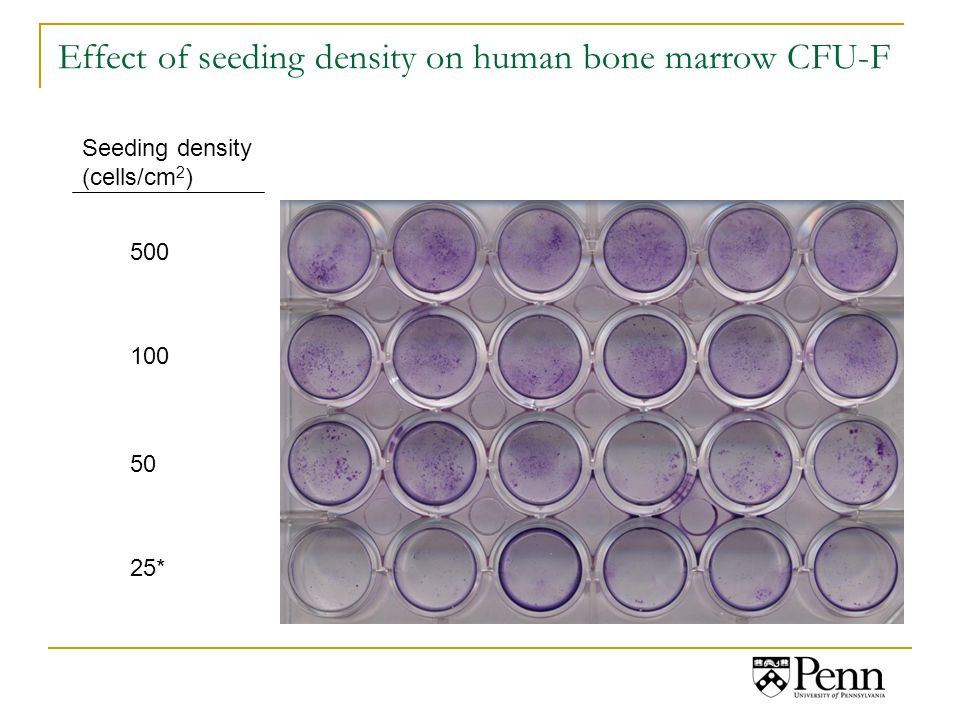 Effect of seeding density on human bone marrow CFU-F Seeding density (cells/cm 2 ) 500 100 50 25*