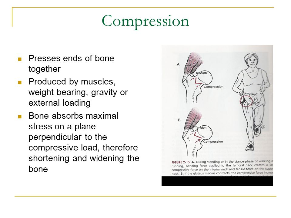 Compression Presses ends of bone together Produced by muscles, weight bearing, gravity or external loading Bone absorbs maximal stress on a plane perpendicular to the compressive load, therefore shortening and widening the bone