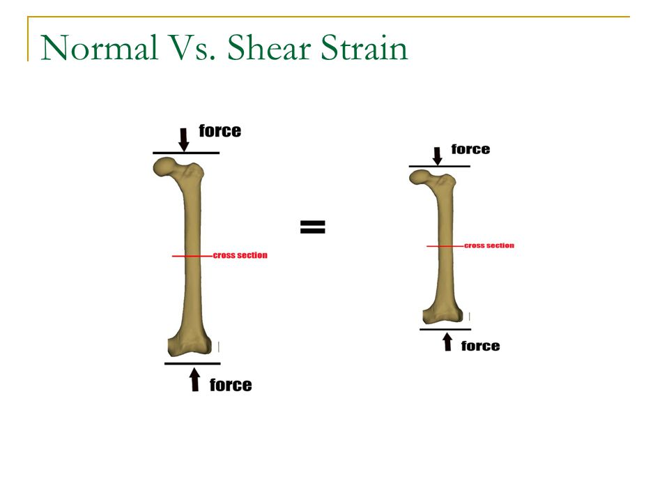Normal Vs. Shear Strain Normal Strain produces a change in length