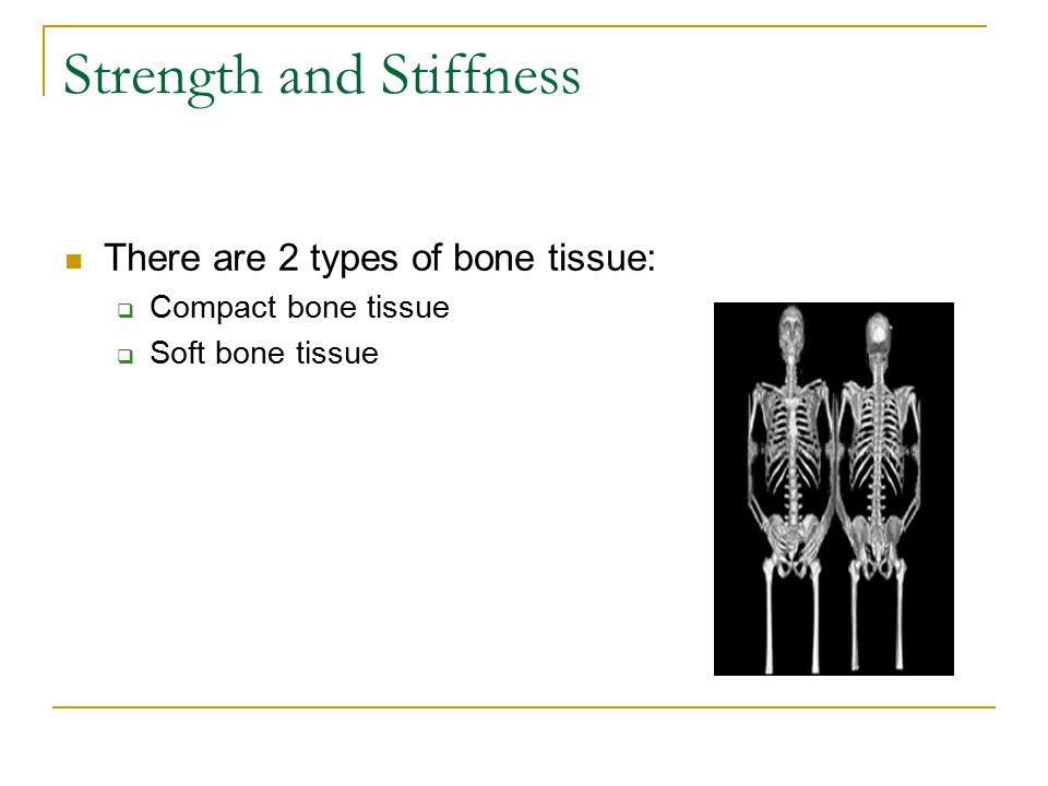 Compact Bone Contains very few spaces Forms external layer of all bones Most of the diaphyses of long bones are long bones Resist stresses produced by weight and movement Osteons are aligned in the same direction along lines of stress