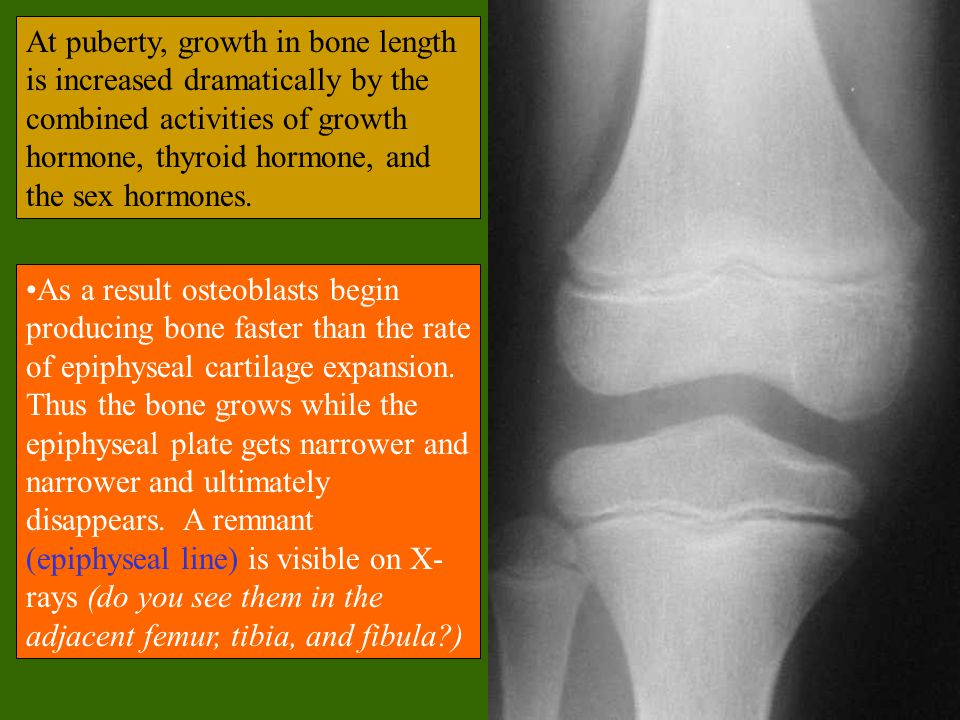As a result osteoblasts begin producing bone faster than the rate of epiphyseal cartilage expansion.