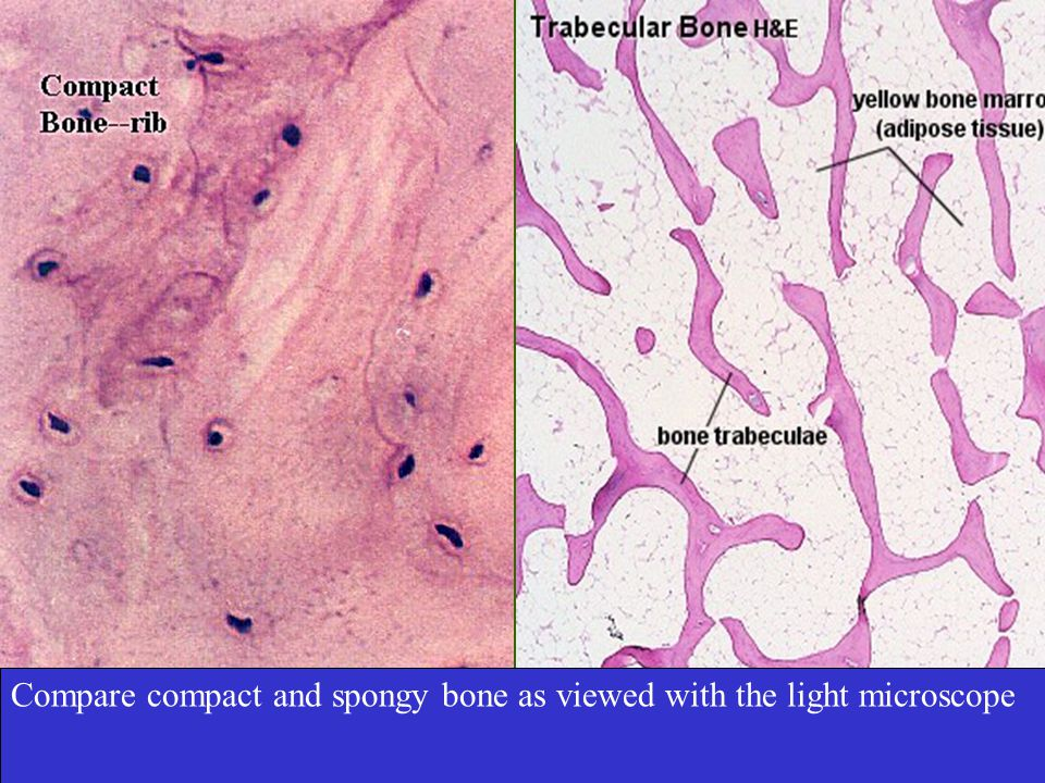 Bone Cells Osteoblasts - Bone-building cells - Initiate the process of calcification.