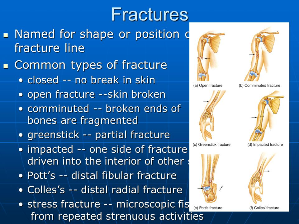 23 Fractures Named for shape or position of fracture line Named for shape or position of fracture line Common types of fracture Common types of fracture closed -- no break in skinclosed -- no break in skin open fracture --skin brokenopen fracture --skin broken comminuted -- broken ends of bones are fragmentedcomminuted -- broken ends of bones are fragmented greenstick -- partial fracturegreenstick -- partial fracture impacted -- one side of fracture driven into the interior of other sideimpacted -- one side of fracture driven into the interior of other side Pott's -- distal fibular fracturePott's -- distal fibular fracture Colles's -- distal radial fractureColles's -- distal radial fracture stress fracture -- microscopic fissures from repeated strenuous activitiesstress fracture -- microscopic fissures from repeated strenuous activities