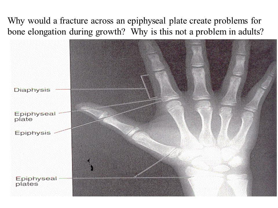 Why would a fracture across an epiphyseal plate create problems for bone elongation during growth? Why is this not a problem in adults?