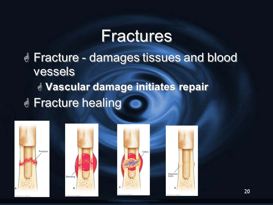 Slide20 Fractures  Fracture - damages tissues and blood vessels  Vascular damage initiates repair  Fracture healing  Fracture - damages tissues an