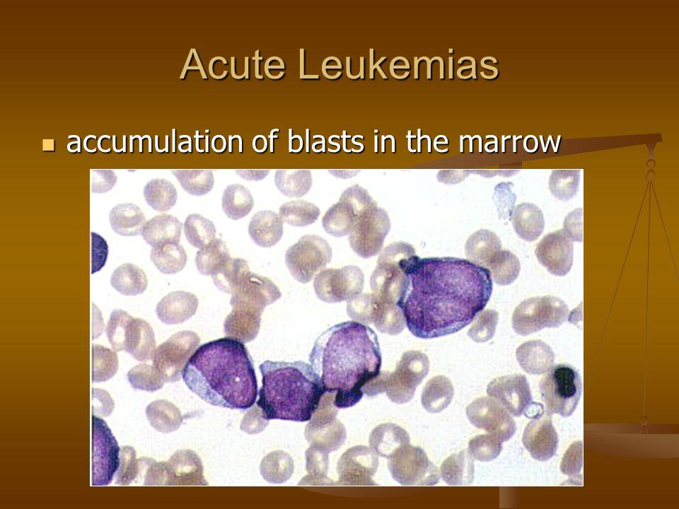Acute Leukemias accumulation of blasts in the marrow accumulation of blasts in the marrow