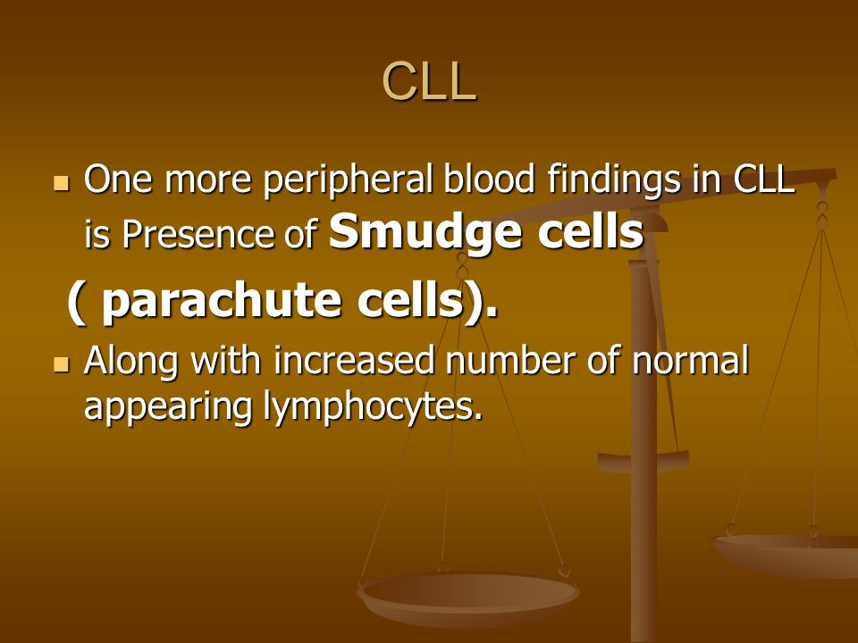 CLL One more peripheral blood findings in CLL is Presence of Smudge cells One more peripheral blood findings in CLL is Presence of Smudge cells ( parachute cells).
