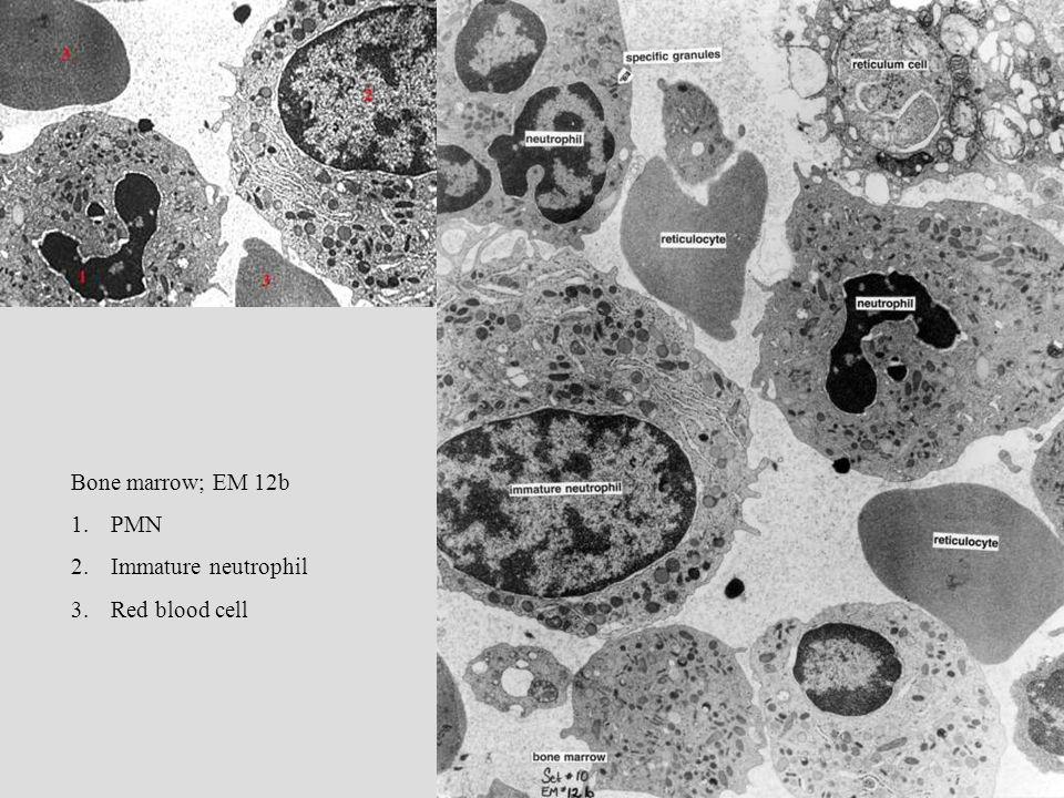 Bone marrow; EM 12b 1.PMN 2.Immature neutrophil 3.Red blood cell