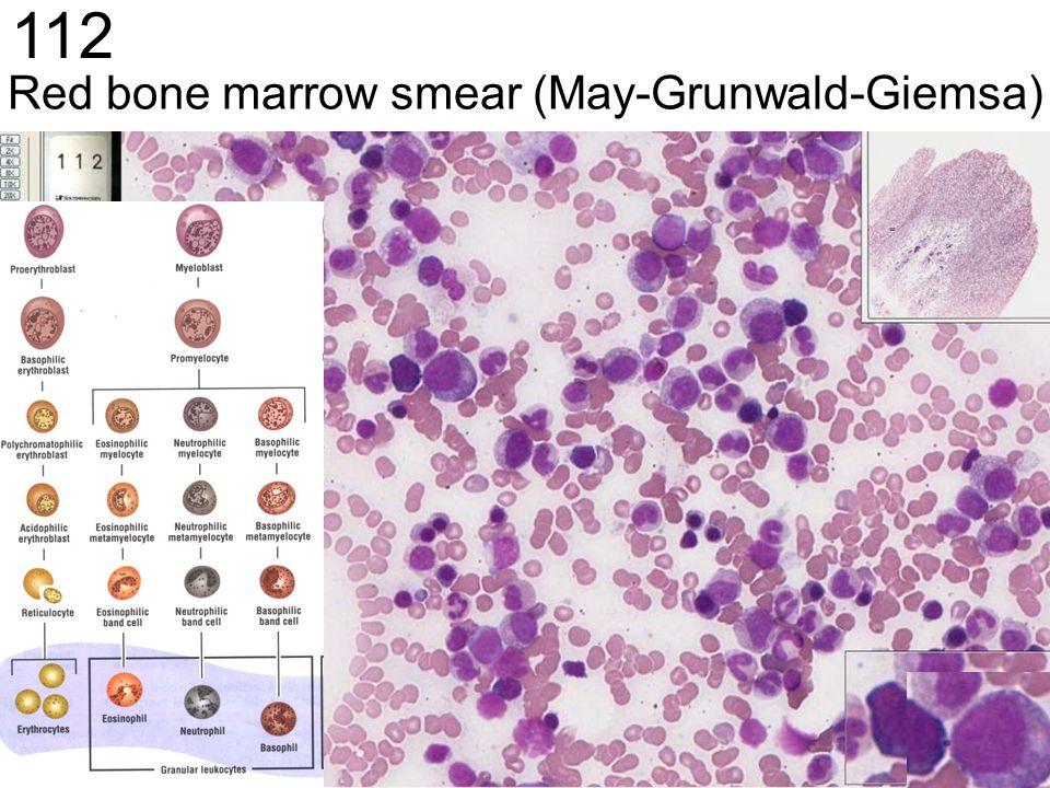 Red bone marrow smear (May-Grunwald-Giemsa) 112