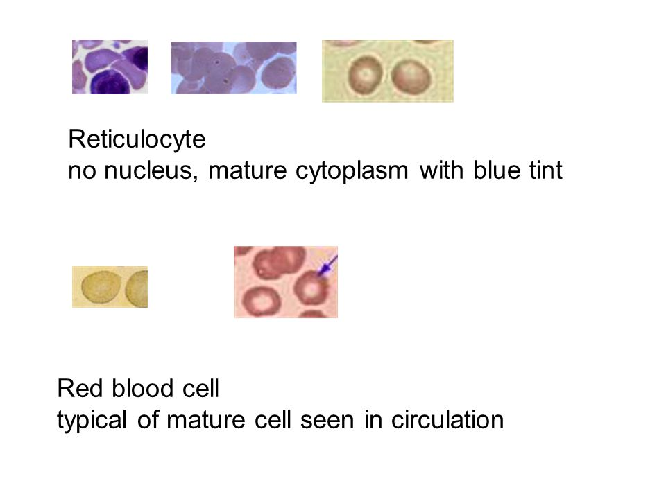 Reticulocyte no nucleus, mature cytoplasm with blue tint Red blood cell typical of mature cell seen in circulation