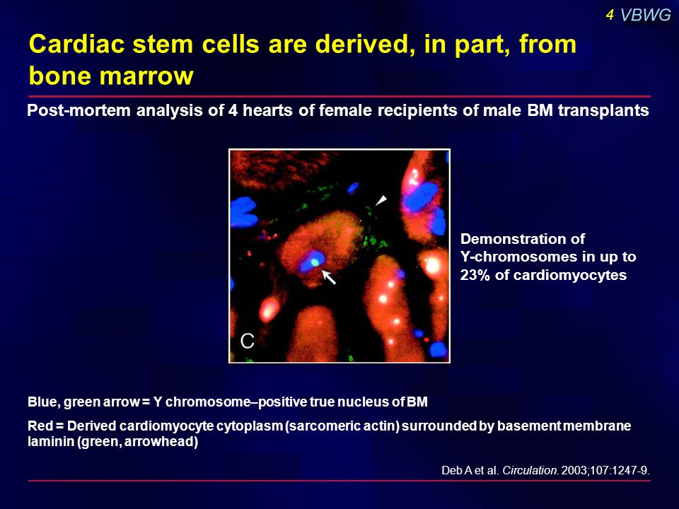4 Deb A et al. Circulation. 2003;107:1247-9. Blue, green arrow = Y chromosome–positive true nucleus of BM Red = Derived cardiomyocyte cytoplasm (sarco