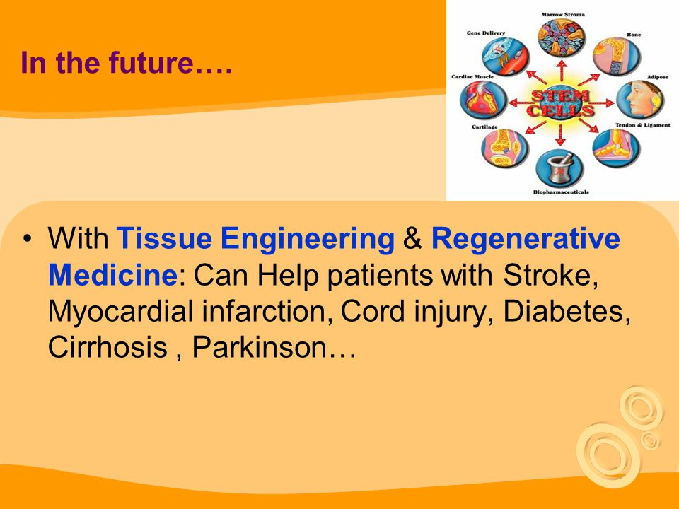 In the future…. With Tissue Engineering & Regenerative Medicine: Can Help patients with Stroke, Myocardial infarction, Cord injury, Diabetes, Cirrhosi