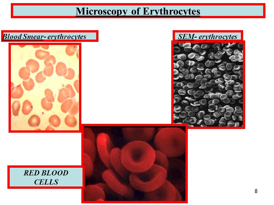 8 Microscopy of Erythrocytes Blood Smear- erythrocytesSEM- erythrocytes RED BLOOD CELLS