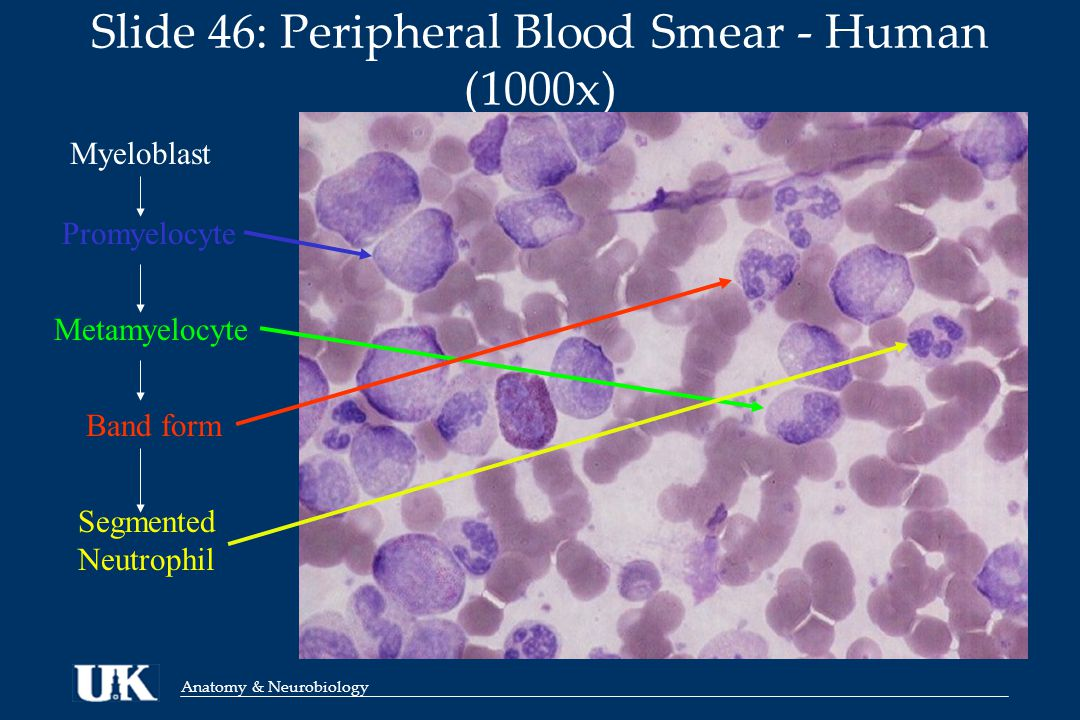 Anatomy & Neurobiology Slide 46: Peripheral Blood Smear - Human (1000x) Myeloblast Metamyelocyte Promyelocyte Band form Segmented Neutrophil