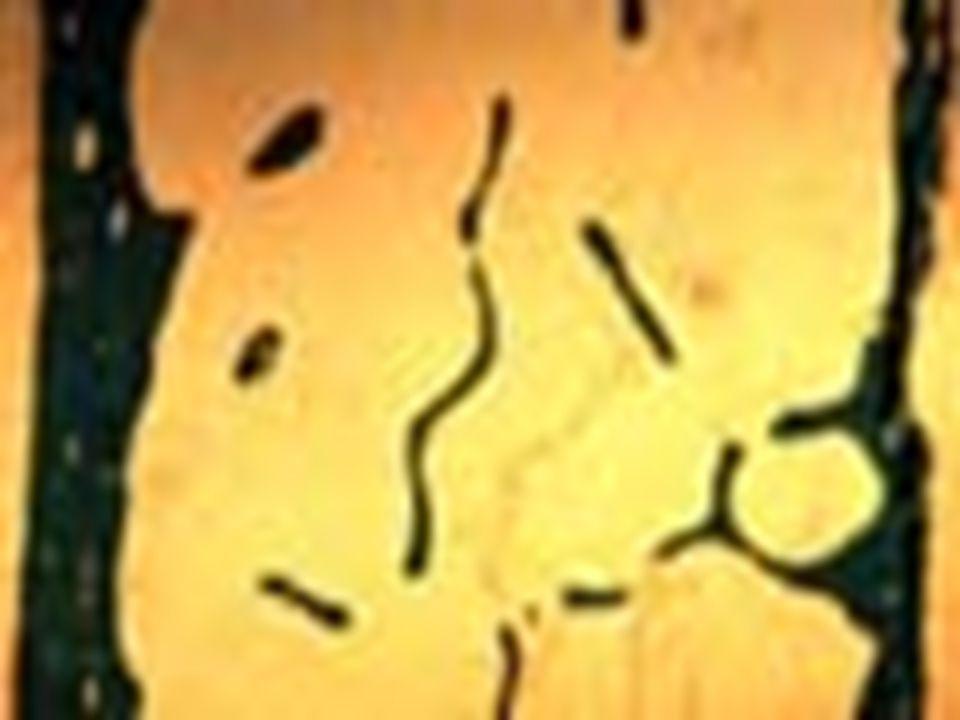 Normal Spongy Bone Osteoporotic Spongy Bone