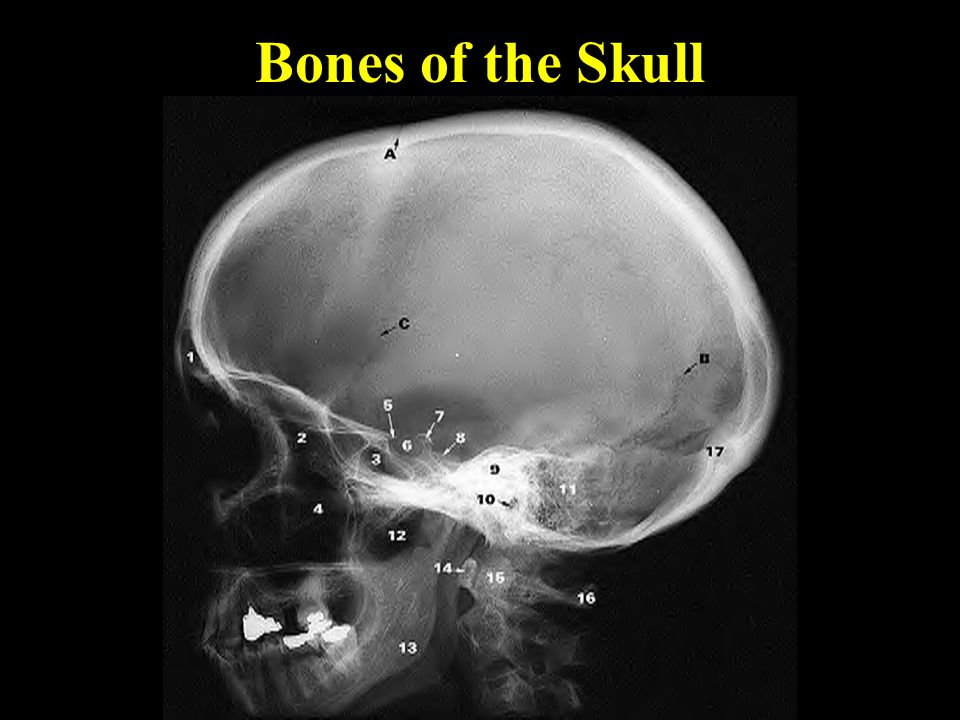 Classification of Bones 4.