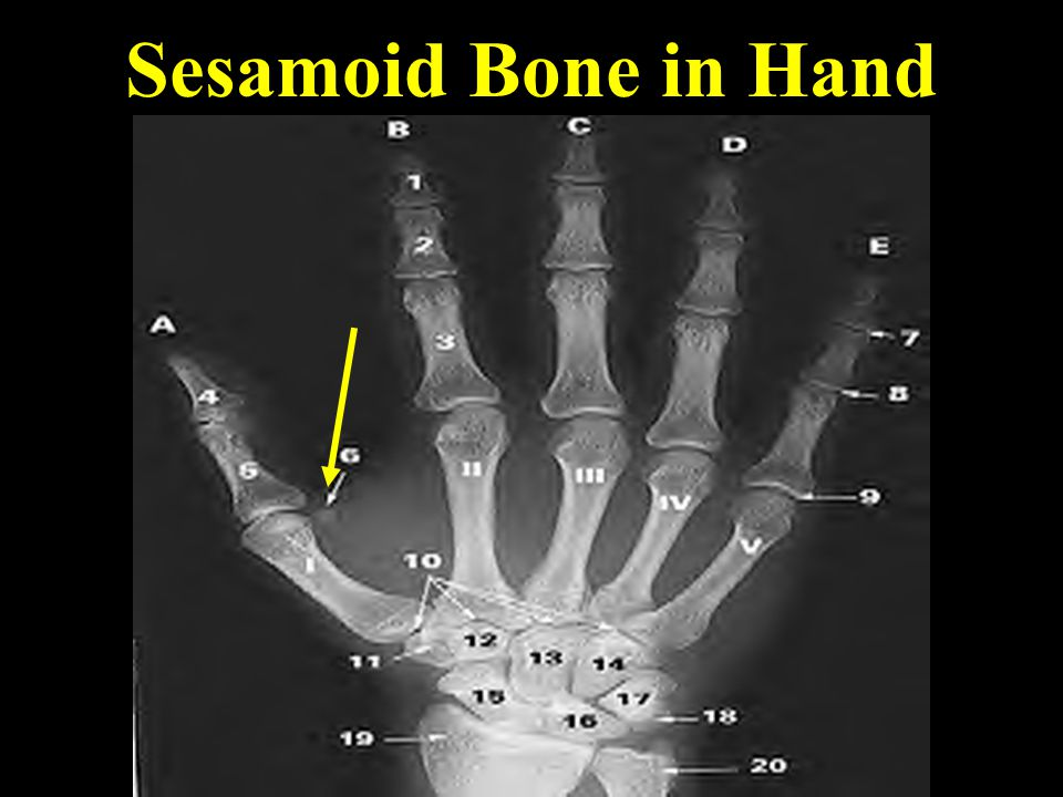 Sesamoid Bone in Hand