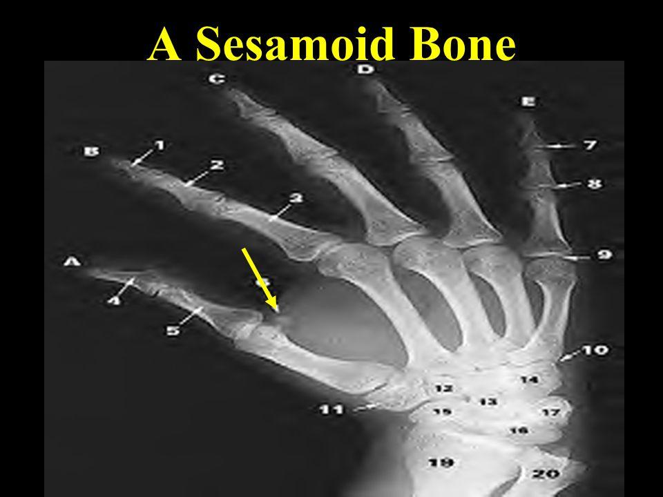 Other Sesamoid Bones!
