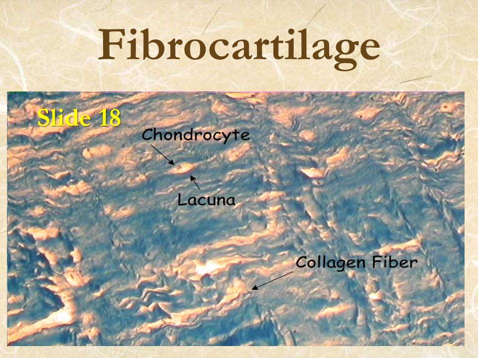 Fibrocartilage Slide 18