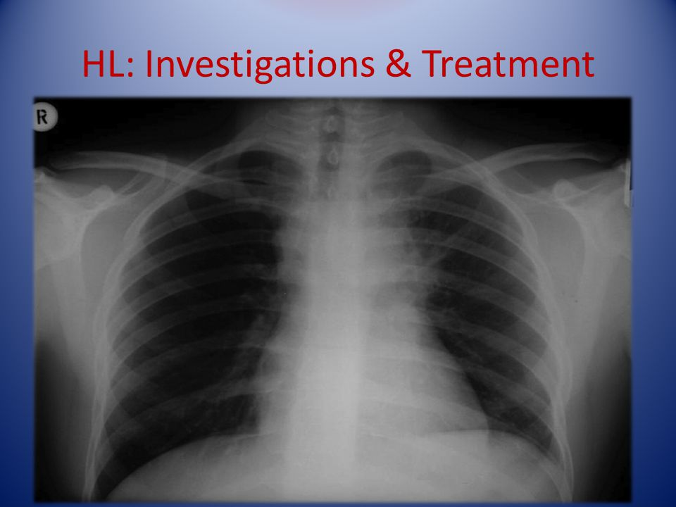 HL: Investigations & Treatment LN biopsy. FBC – Hb can be normal or low. High lymphocytes. ESR raised, abnormal LFTs. CXR and CT, ? PET scan Staging b