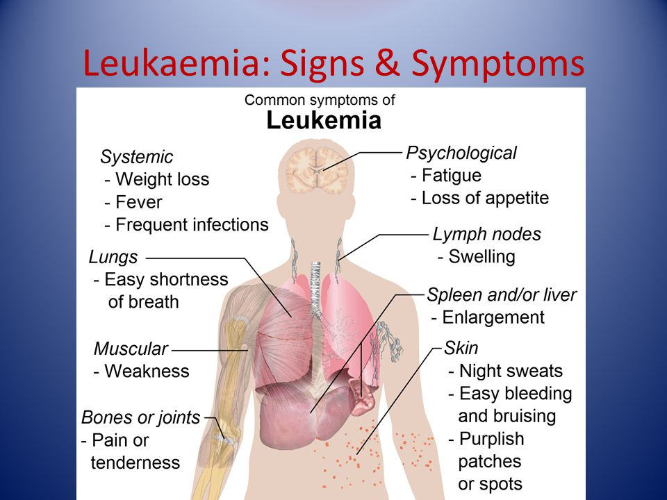 Leukaemia: Signs & Symptoms Mostly seen in acute leukaemia, late chronic. Due to bone marrow failure – red marrow in central skeleton and proximal lon