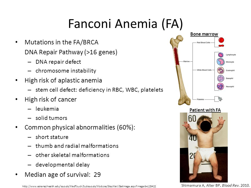 Fanconi Anemia (FA) Mutations in the FA/BRCA DNA Repair Pathway (>16 genes) – DNA repair defect – chromosome instability High risk of aplastic anemia – stem cell defect: deficiency in RBC, WBC, platelets High risk of cancer – leukemia – solid tumors Common physical abnormalities (60%): – short stature – thumb and radial malformations – other skeletal malformations – developmental delay Median age of survival: 29 Shimamura A, Alter BP.
