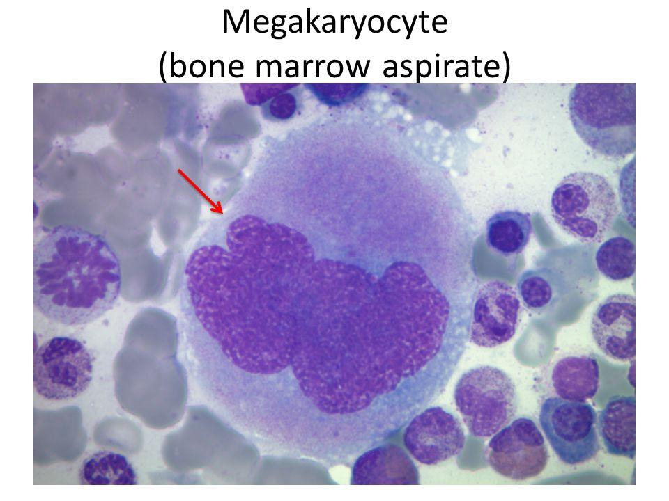 Megakaryocyte (bone marrow aspirate)