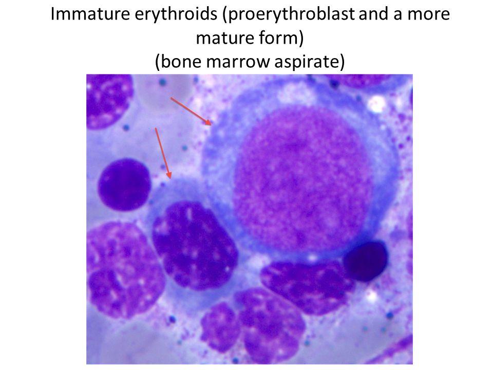 Immature erythroids (proerythroblast and a more mature form) (bone marrow aspirate)