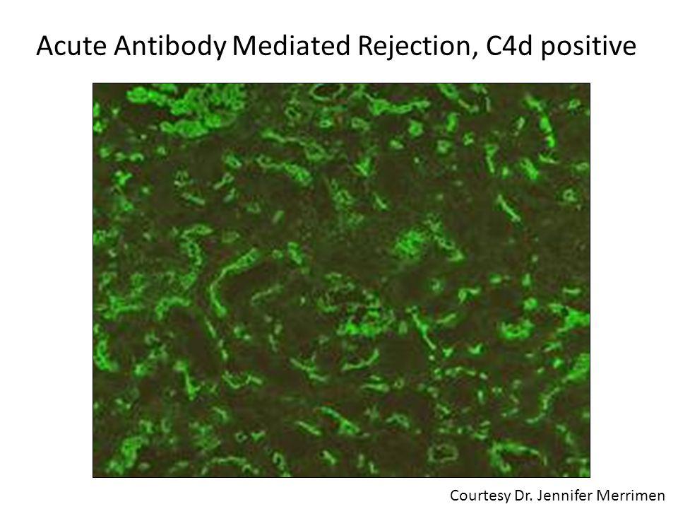 Acute Antibody Mediated Rejection, C4d positive Courtesy Dr. Jennifer Merrimen
