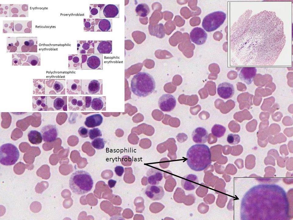 Basophilic erythroblast