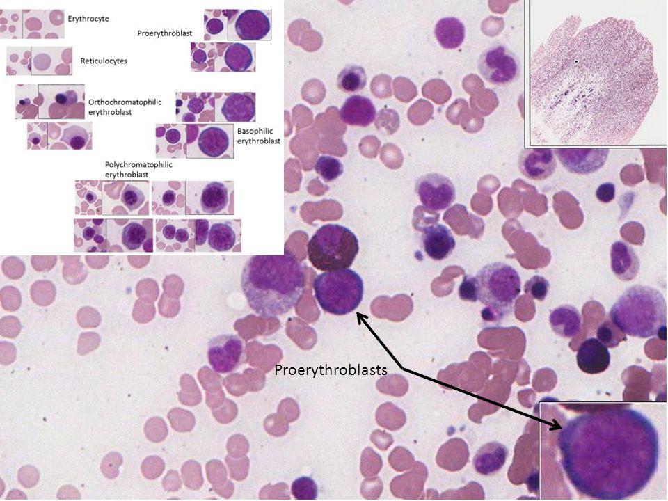 Proerythroblasts