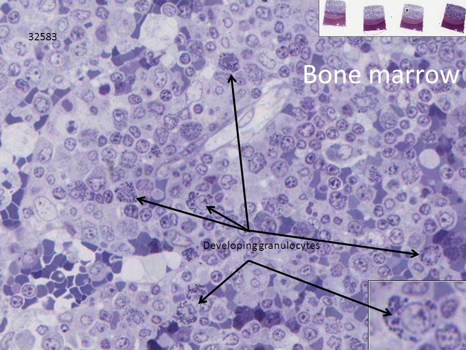 ` Bone marrow 32583 Developing granulocytes