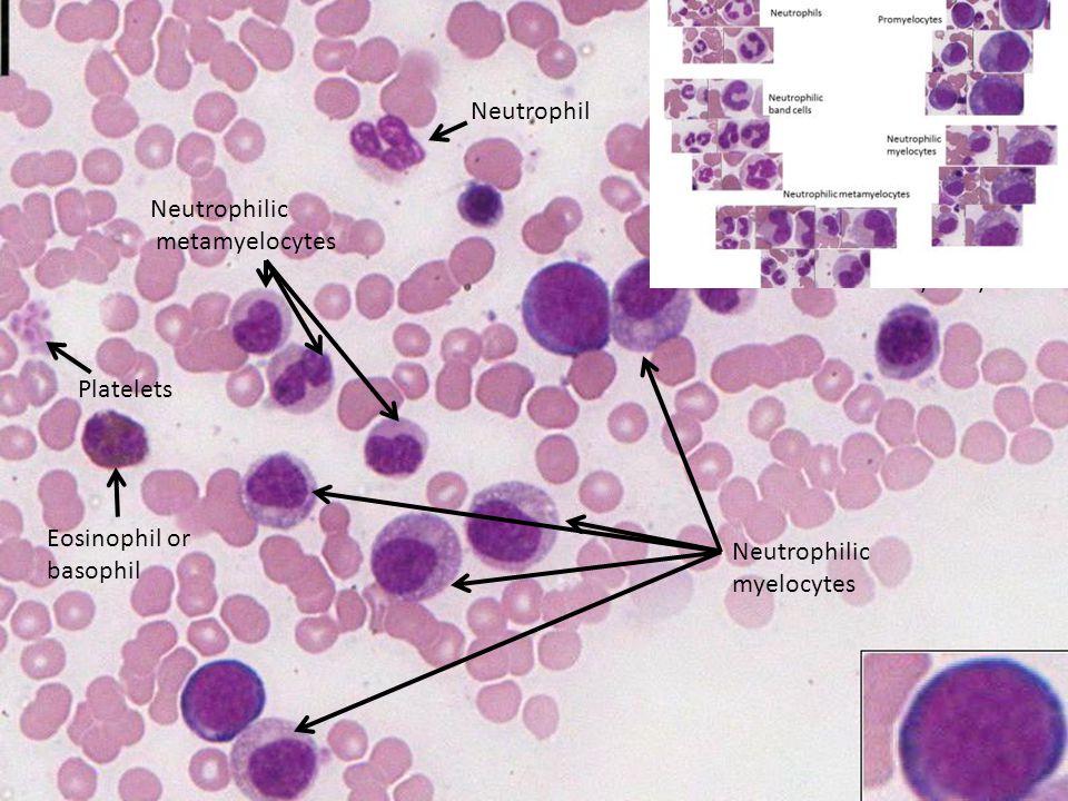 ut 112 Neutrophilic myelocytes Neutrophilic metamyelocyte Neutrophil Eosinophil or basophil Platelets Neutrophilic metamyelocytes