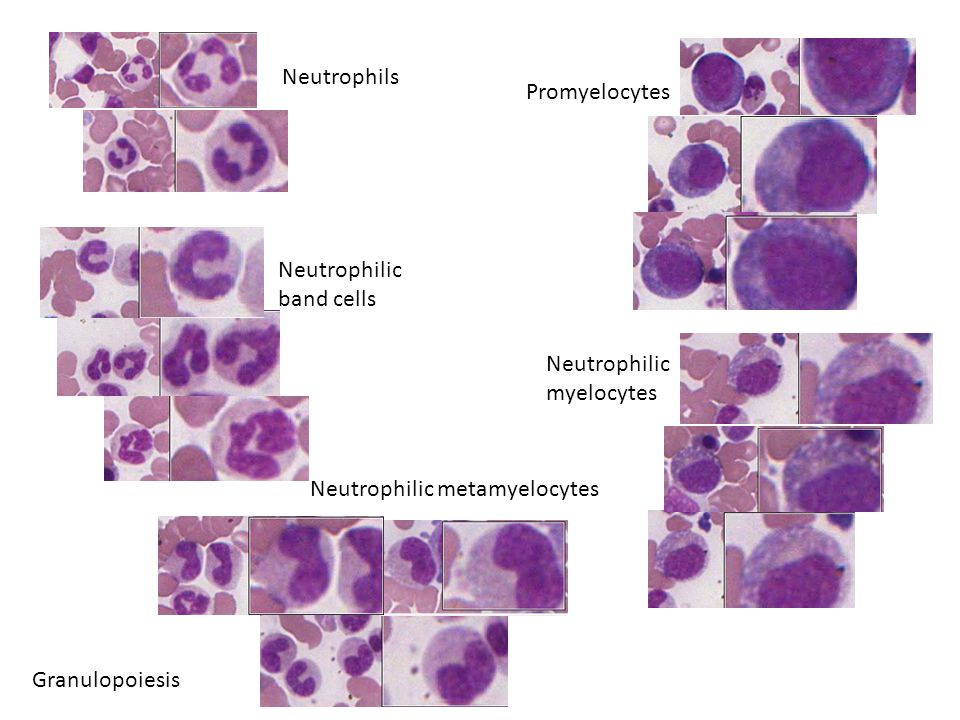 Neutrophilic band cells Neutrophils Neutrophilic myelocytes Promyelocytes Neutrophilic metamyelocytes Granulopoiesis