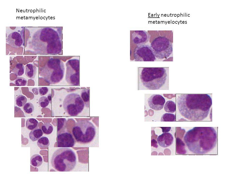 Early neutrophilic metamyelocytes Neutrophilic metamyelocytes
